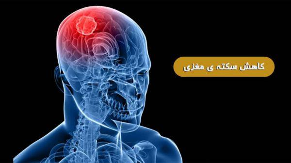 نقش قارچ در کاهش سکته مغزی